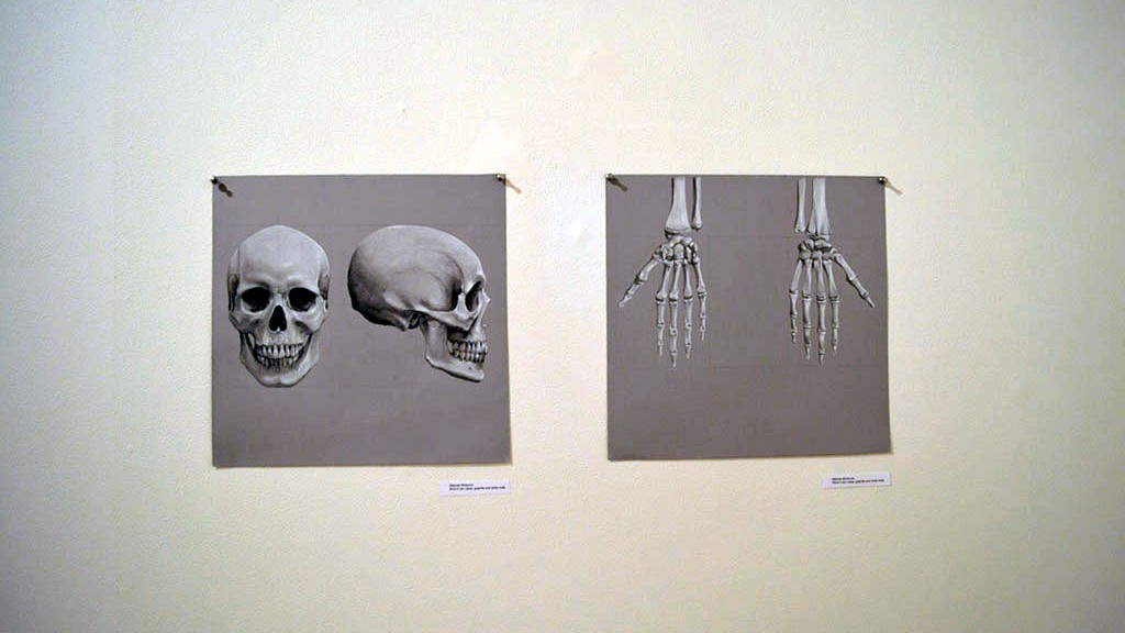 Anatomy Of A Body Of Work At The Surgical Museum Medill Reports